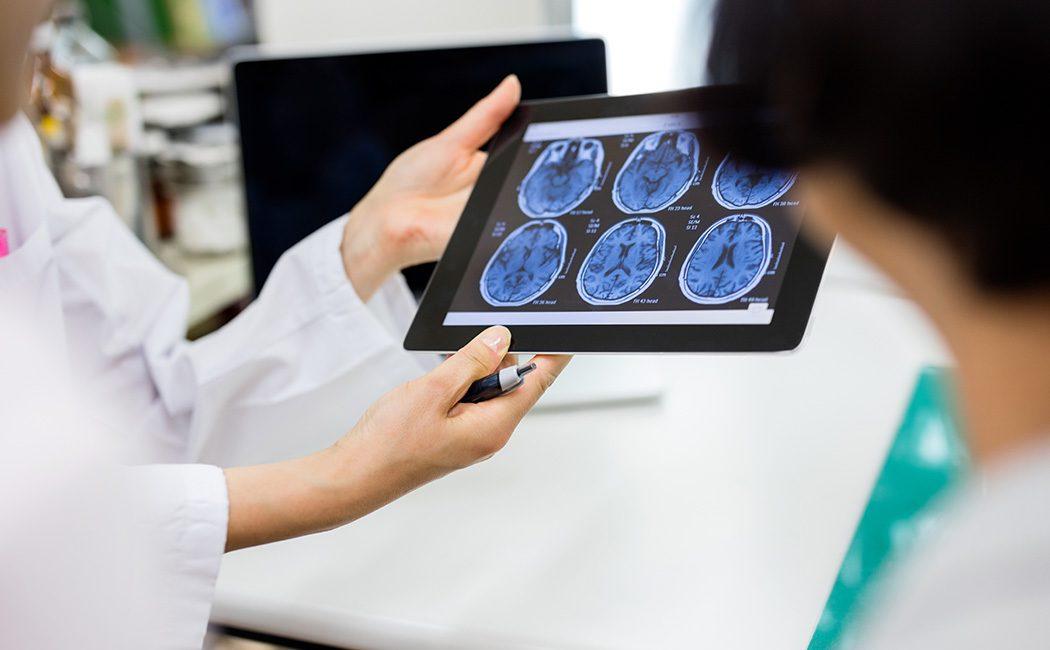 Brain tumour scans